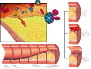 colesterol01